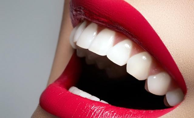 Diş beyazlatma kabusunuz olmasın...