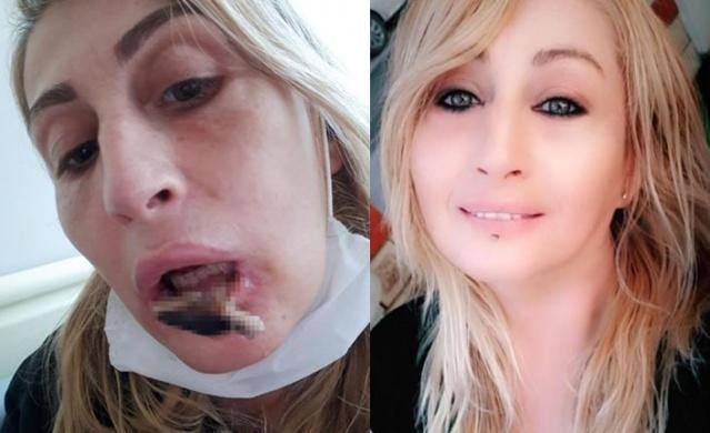 Antalya'da, daha güzel görünmek için yüzüne estetik yaptıran Songül Uzunoğlu (41), 4 operasyon sonrasında tanınmaz hale geldi. Alt dudağını kaybeden ve ağız içi dokularında çürüme meydana gelen Uzunoğlu, doktorlarının hatalı uygulama yaptığını öne sürerek Sağlık Bakanlığı'na şikayetçi oldu.