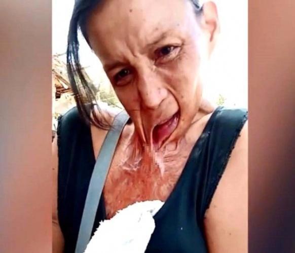 Elindeki mum yüzünden dudağı göğsüne yapışan kadının dramı!
