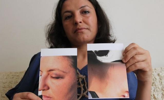 Mersin'de eşi Nurcan Altundal'ı (33) 2 çocuğuyla birlikte 6 saat boyunca rehin alan Ali Altundal'ın (37), olay günü yardım isteyen eşinin kafasını balkondaki demir korkuluklara vurduğu ortaya çıktı.