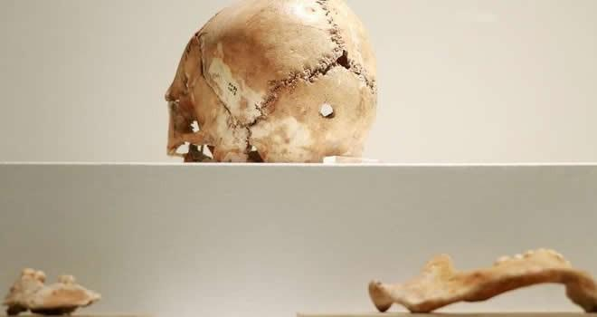 İlk beyin ameliyatı Aksaray'da yapılmış