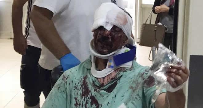 Abi-kardeş arasındaki miras kavgası kanlı bitti: 5 kişi yaralı