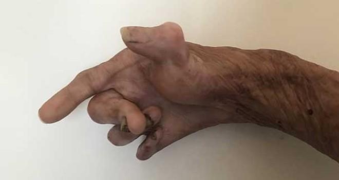 Sadece bir parmağı işlev görebilir halde