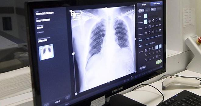 Türkiye'de ilk kez akciğer nakli yapıldı