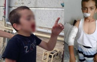 Sultangazi'de küçük çocuğa köpek saldırdı